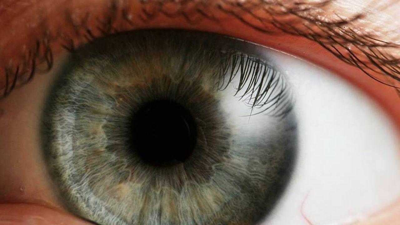 17745_1385391996_eye-iris.jpg