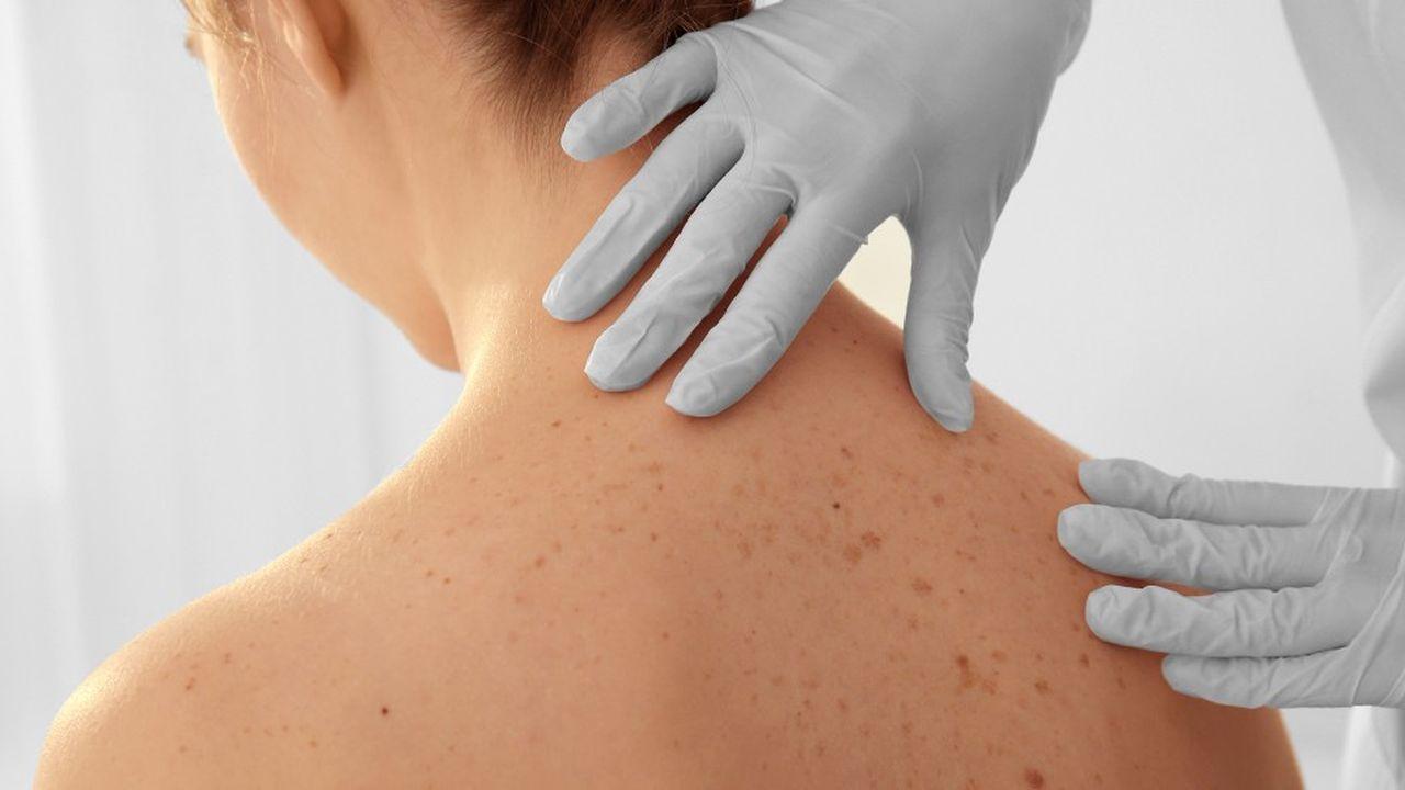 L'immunothérapie anticancéreuse est considérée par la communauté scientifique médicale comme une révolution thérapeutique.
