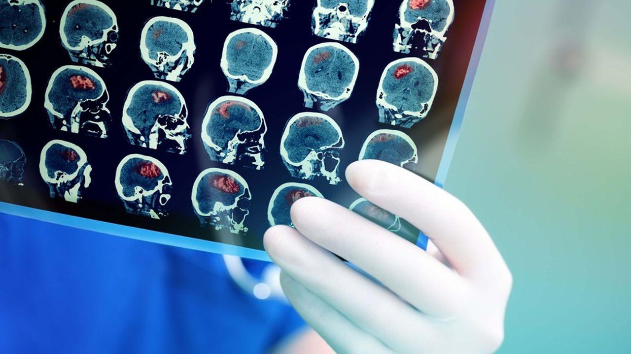 L'enquête a été publiée dans le Journal of Neurology Neurosurgery and Psychiatry.