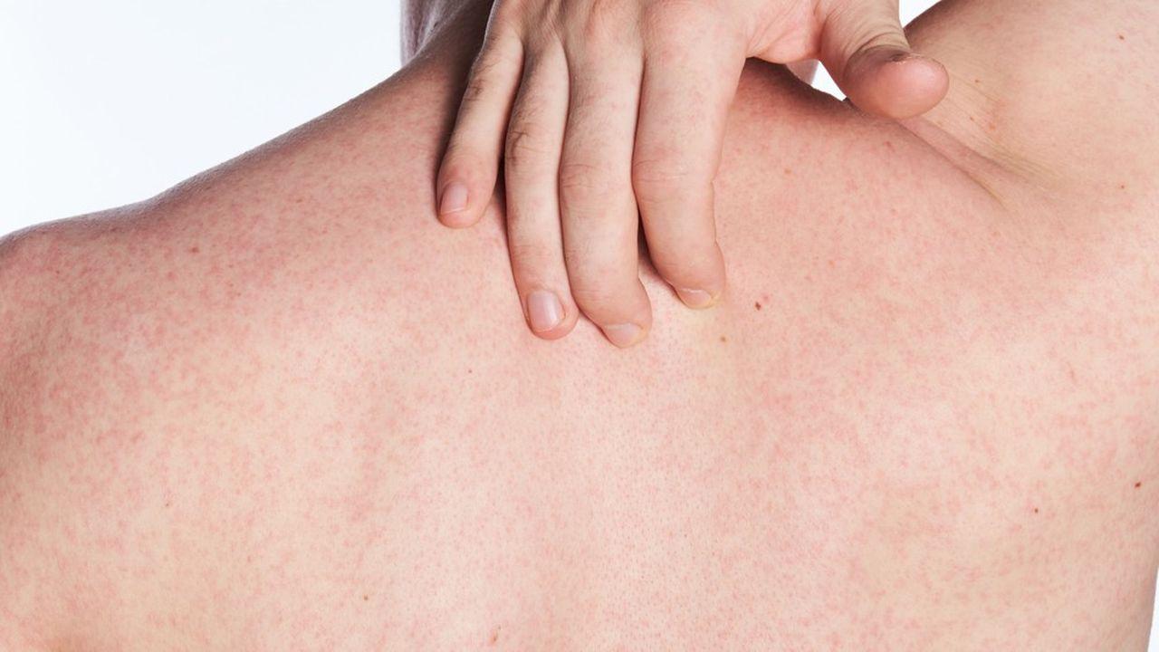 Le psoriasis est une maladie dermatologique chronique invalidante qui touche 125millions de personnes de part et d'autre de l'Atlantique