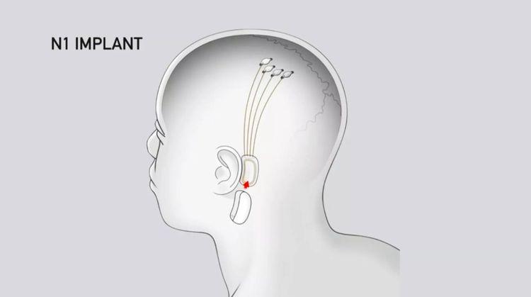 L'implant sera branché à une multitude de fils, traversant le crâne, reliés à des électrodes enregistrant l'activité cérébrale.