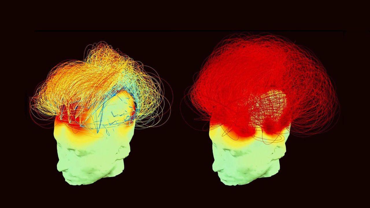 Cette image du cerveau de Matthieu Ricard (à gauche au repos et à droite en pleine méditation) montre l'intensité des connexions cérébrales : plus les lignes sont rouges, plus la communication entre les régions du cerveau est intense. Comme on le voit, la méditation ne consiste absolument pas à ne penser à rien ou à faire le vide, au contraire !