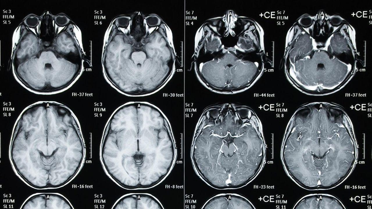Les deux hémisphères d'un cerveau (ici un scanner de crâne d'enfant) ne sont pas mobilisés de la même façon pour traiter le langage et la musique.