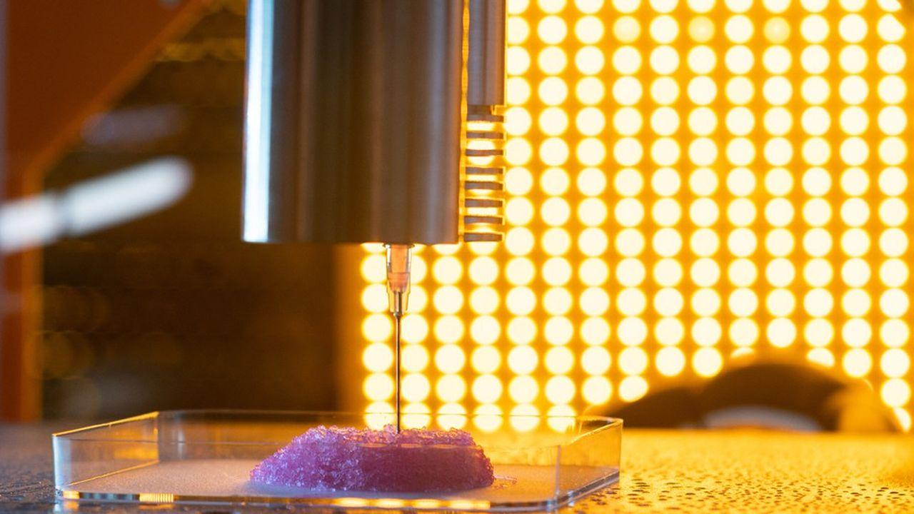 La bioprothèse mammaire est imprimée en 3D à partir d'une encre biologique, constituée de propres cellules de la patiente, saines et cultivées in vitro.