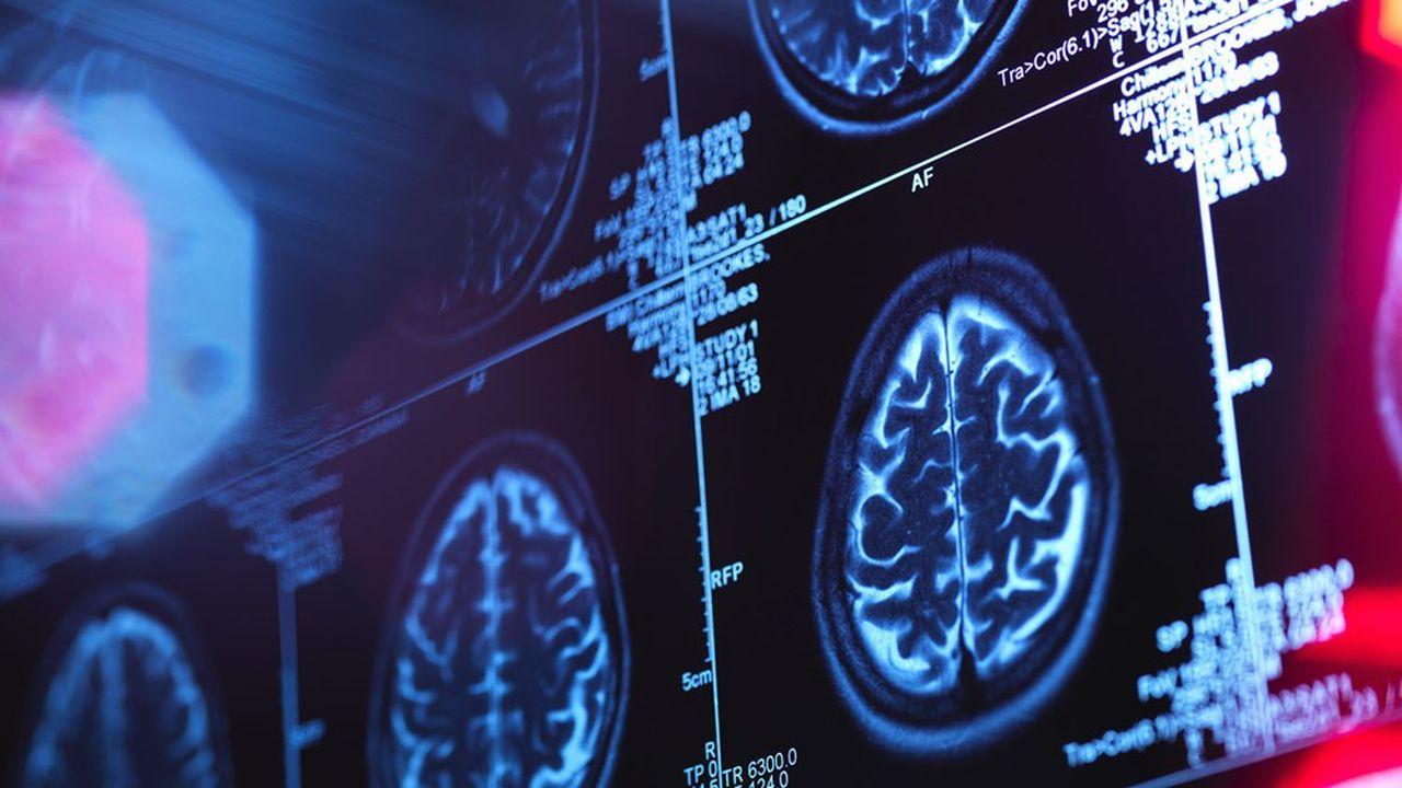 Nos cerveaux sont notre meilleure arme pour gagner la guerre contre cette pandémie, et celles à venir.