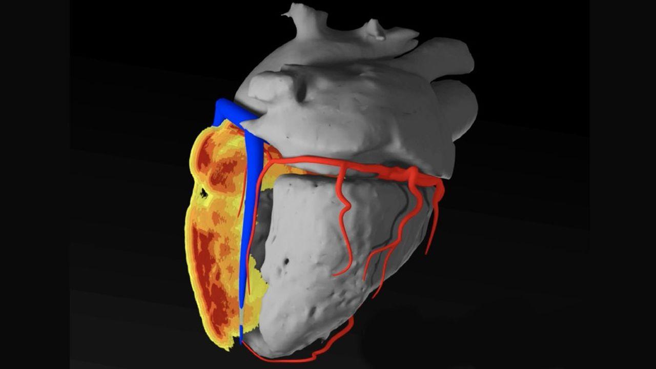 La technologie d'InHeart permet de créer une sorte de double numérique du coeur du patient à partir des images médicales réalisées avant l'opération.