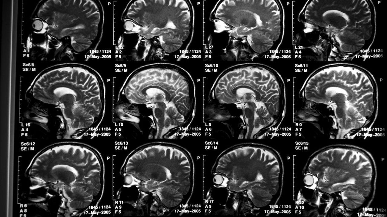 La maladie d'Alzheimer provoque des lésions (ici, le cerveau d'un malade) détectables en imagerie cérébrale.