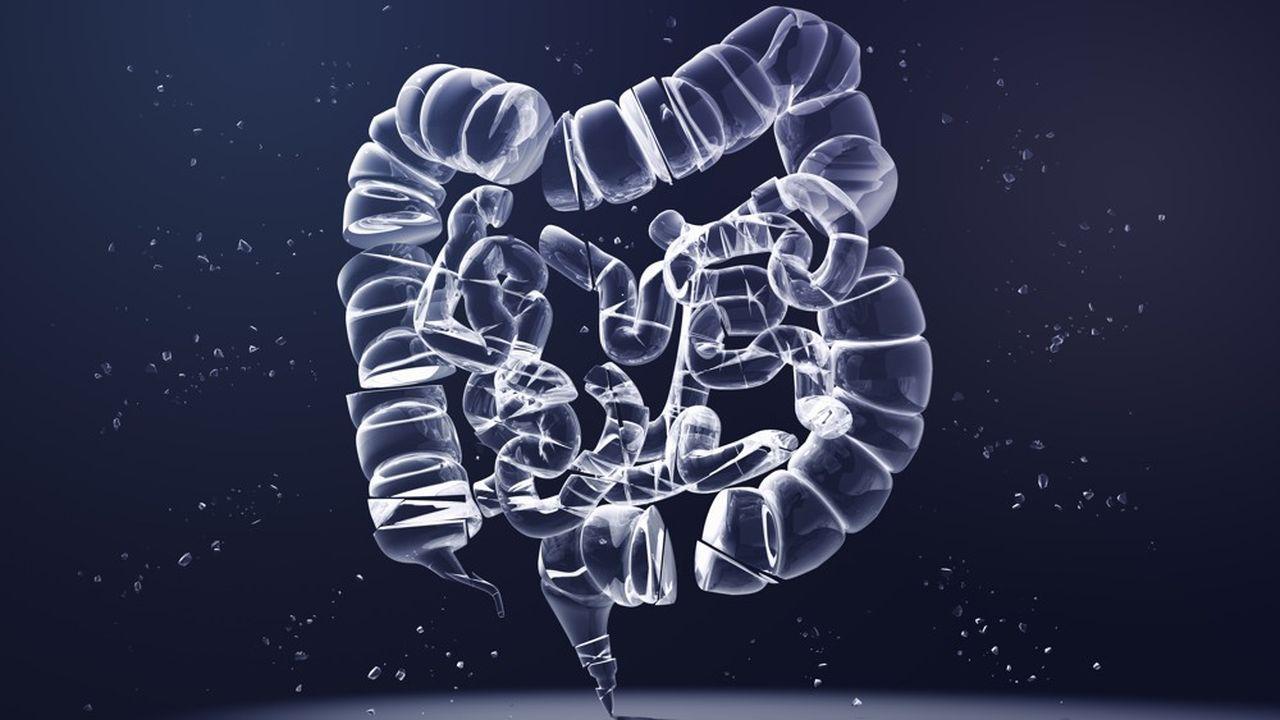 La solution logicielle vise à optimiser la suite du traitement du tiers des patients à fort risque de récidive d'un cancer du côlon ou, au contraire, à permettre une désescalade thérapeutique du tiers présentant un taux de récidive très faible.