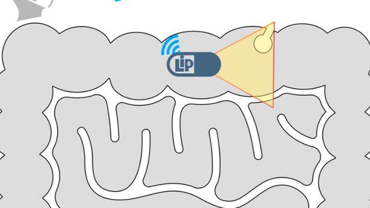 La capsule, capable de prendre une vingtaine de clichés par seconde dans l'intestin, apportera plusieurs images d'un polype photographié sous différents angles.