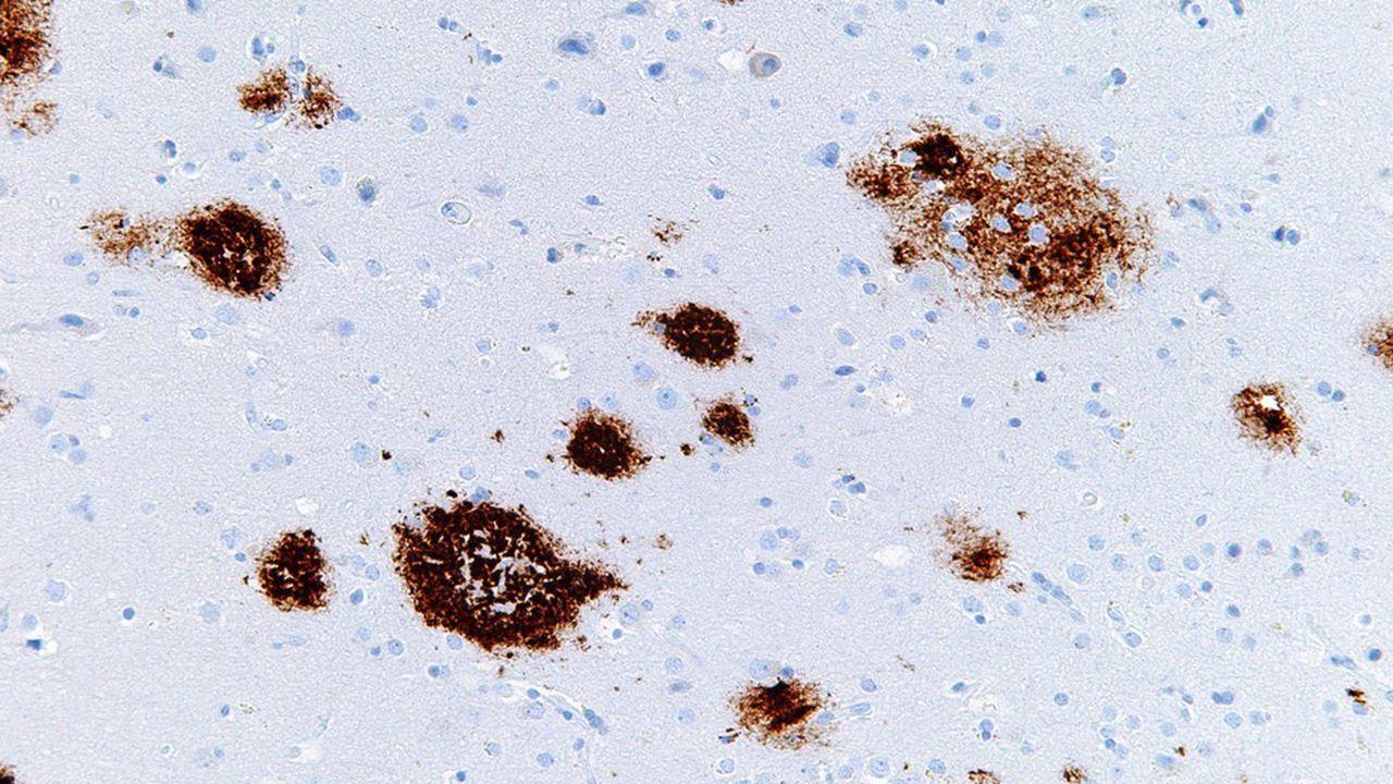 Les plaques amyloïdes (photo) constituent, avec les dégénérescences neurofibrillaires, l'une des deux lésions caractéristiques de la maladie d'Alzheimer.