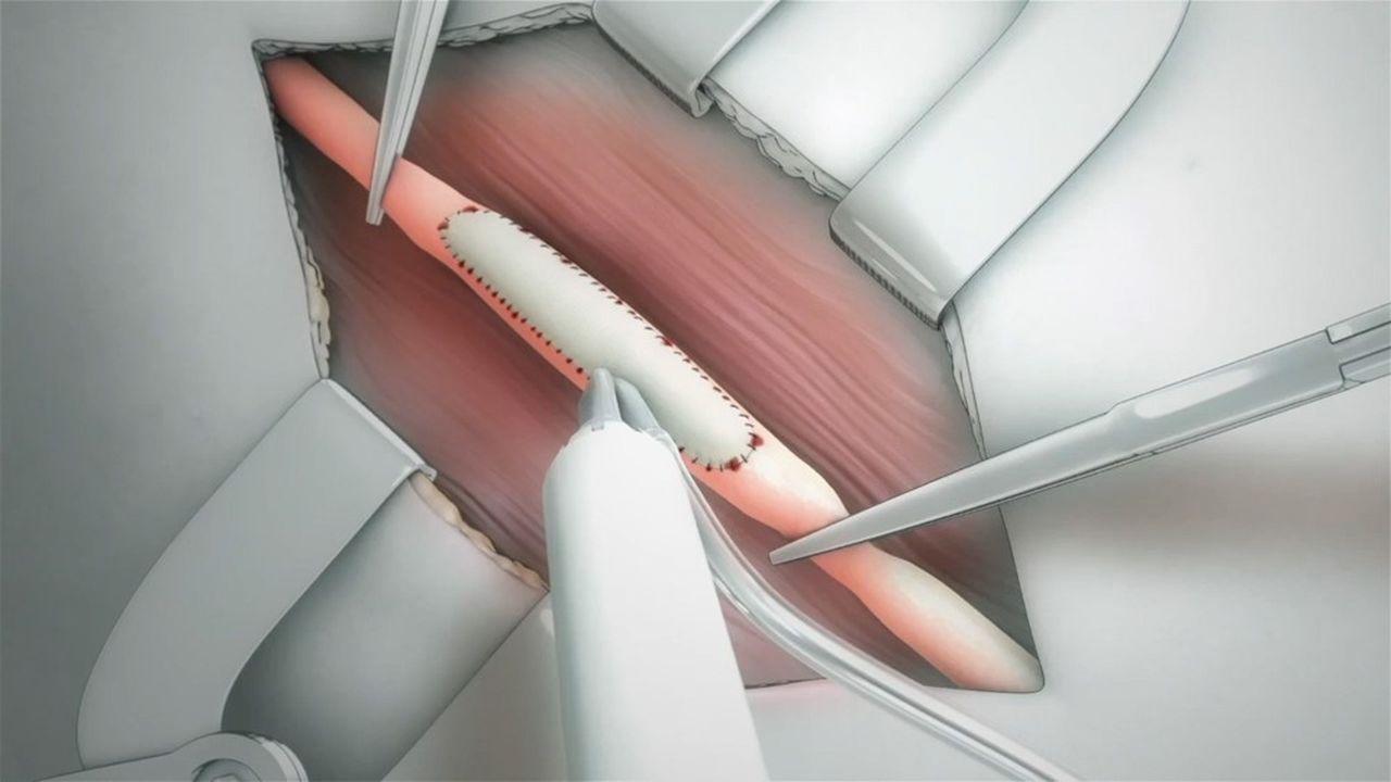 La substance liquide et visqueuse s'applique sur les tissus à traiter et polymérise in situ lorsqu'elle est photo-activée.